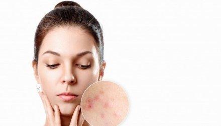 acne op latere leeftijd
